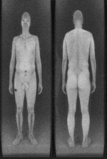 Escanar de cuerpo en los aeropuertos